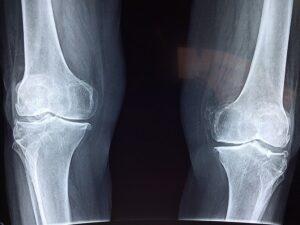Soft Tissue Injury vs Broken Bone
